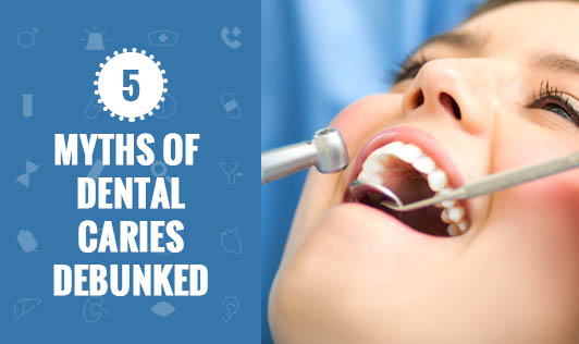 5 Myths of Dental Caries Debunked