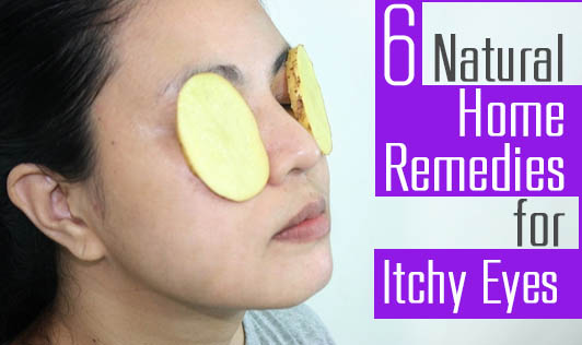 6 Natural Home Remedies for Itchy Eyes