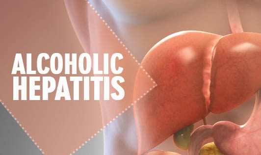 Alcoholic Hepatitis