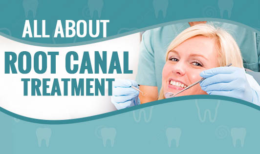 All about Root Canal Treatment