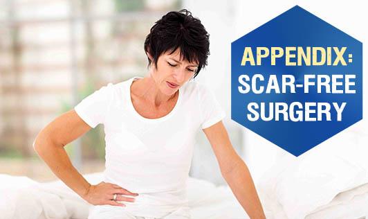 Appendix: Scar-free surgery!