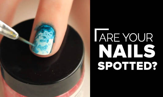 Are your Nails Spotted?