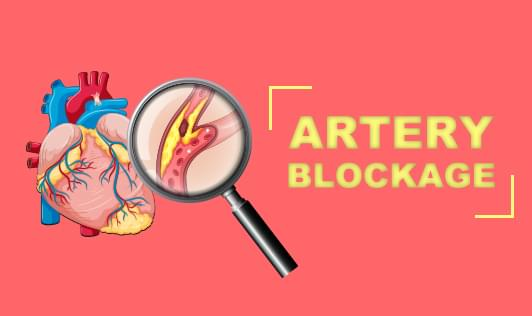 Artery blockage- Symptoms & Diagnosis