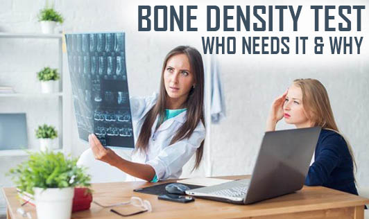 Bone Density Test - Who Needs It & Why