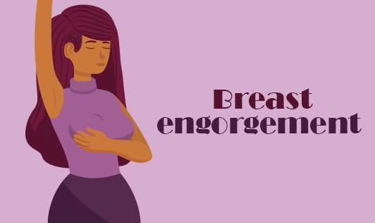 Breast engorgement