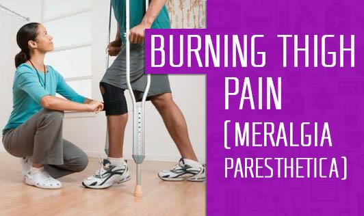 Burning Thigh Pain (Meralgia Paresthetica)