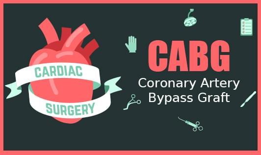CABG (Coronary Artery Bypass Graft)