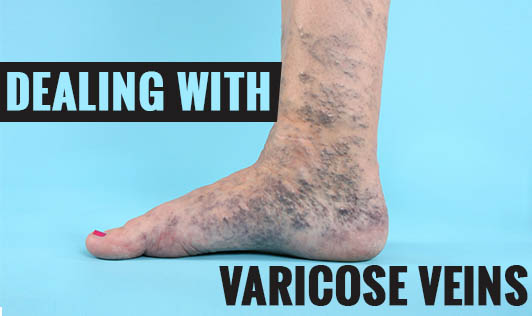Dealing with Varicose Veins