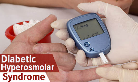 Diabetic Hyperosmolar Syndrome