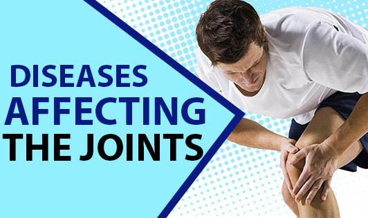 Diseases Affecting the Joints