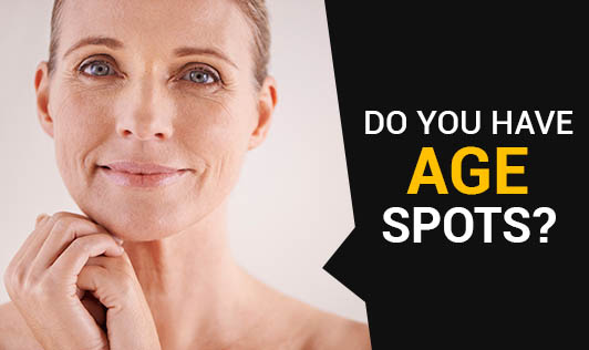 Do You Have Age Spots?