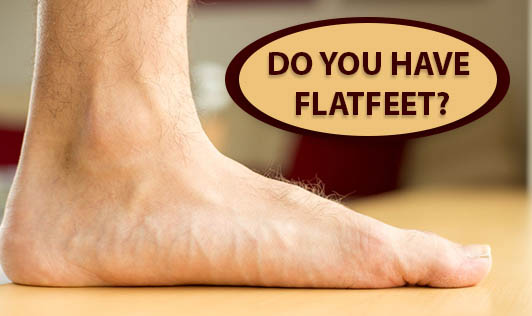 Do you have flatfeet?