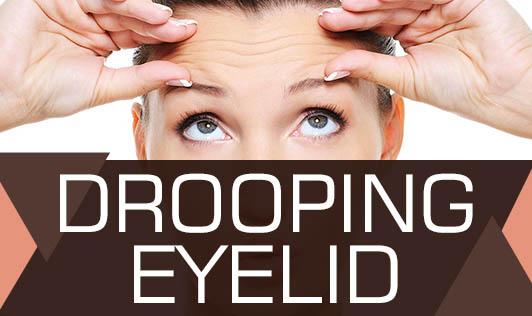 Drooping Eyelid