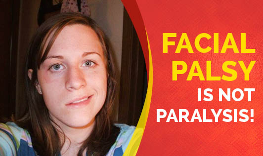 Facial Palsy is not Paralysis!