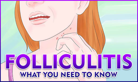 Folliculitis: What you need to know