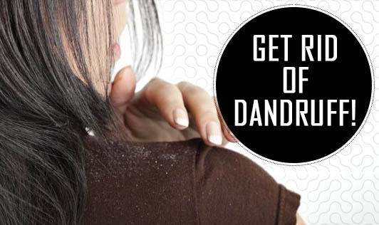 Get rid of dandruff!