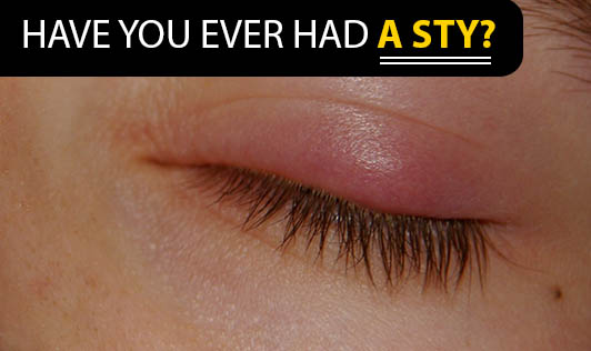 Have you ever had a sty?