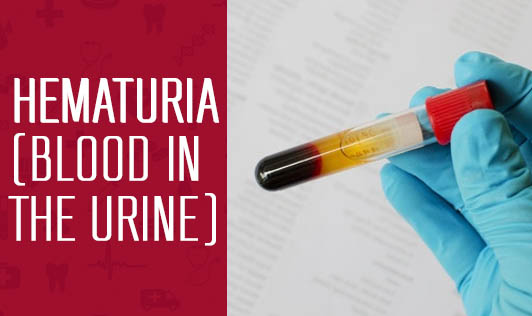 Hematuria (Blood in the urine)