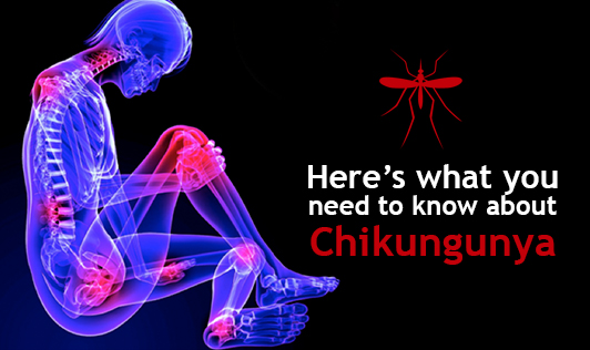 Here's what you need to know about Chikungunya
