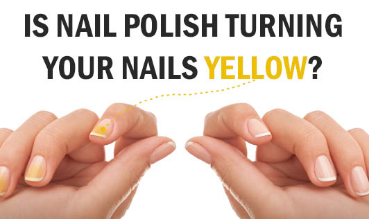 Is Nail Polish Turning Your Nails Yellow?