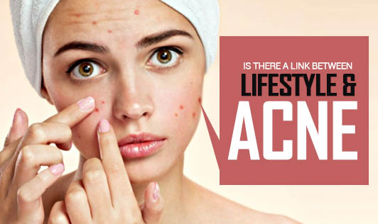 Is there a link between lifestyle and acne?
