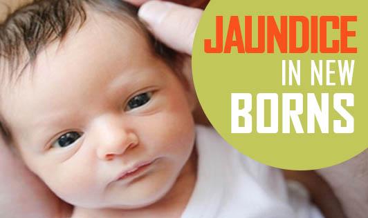 Jaundice in newborns!