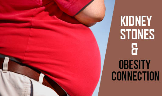 Kidney Stones & Obesity Connection