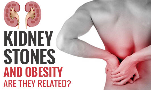 Kidney Stones and Obesity - Are they Related?