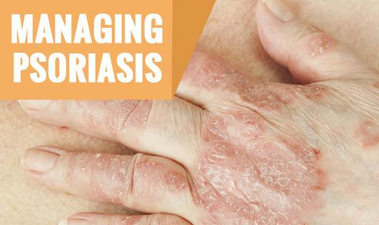 Managing Psoriasis