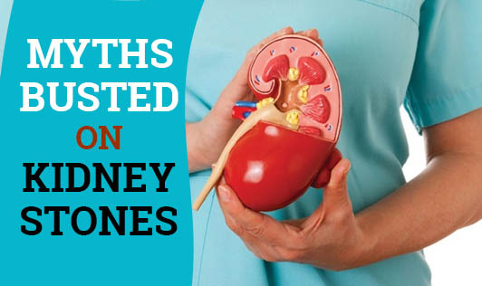 Myths busted on Kidney Stones