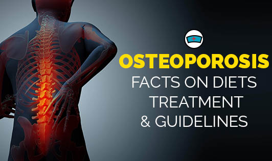 Osteoporosis: Facts on Diets, Treatment, & Guidelines