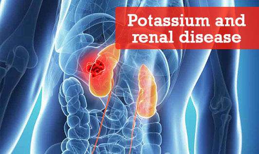 Potassium and renal disease