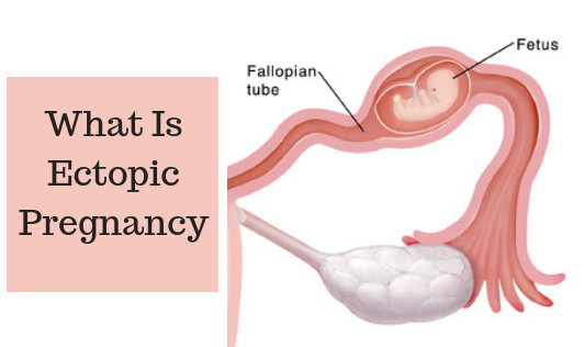 What Is Ectopic Pregnancy?