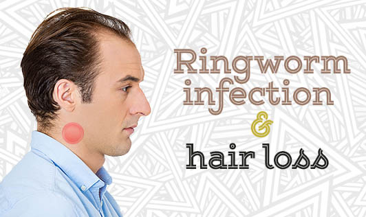 Ringworm infection & hair loss
