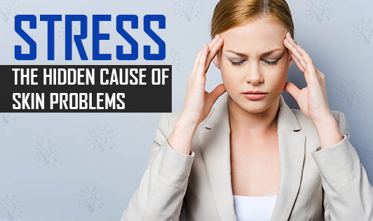 Stress: The Hidden Cause of Skin Problems