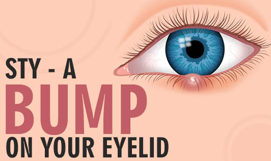 Sty - A Bump on Your Eyelid