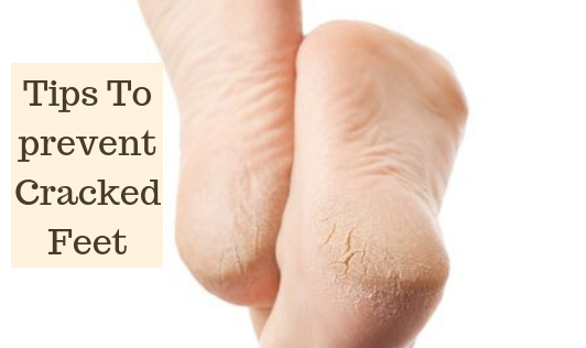 Do you have cracked feet?