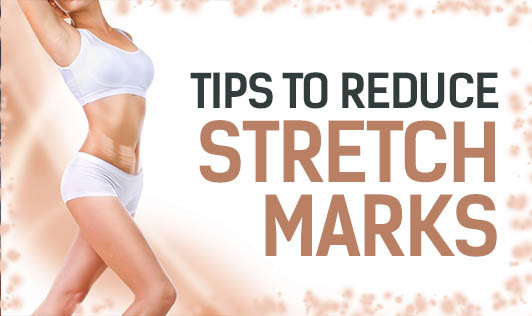 Tips to Reduce Stretch Marks