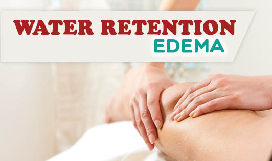 Water Retention - edema