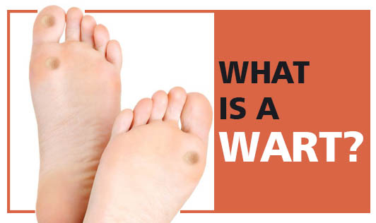 What Is A Wart?