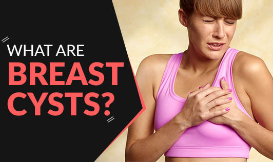 What are breast cysts?