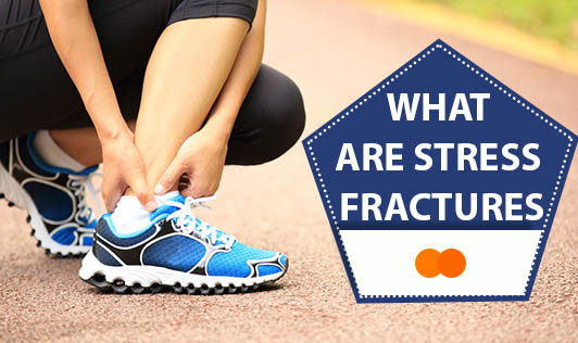 What are stress fractures?