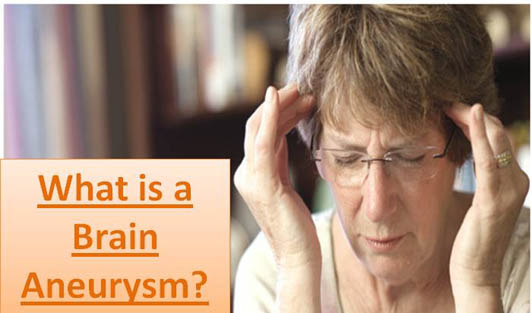 What is a Brain Aneurysm?