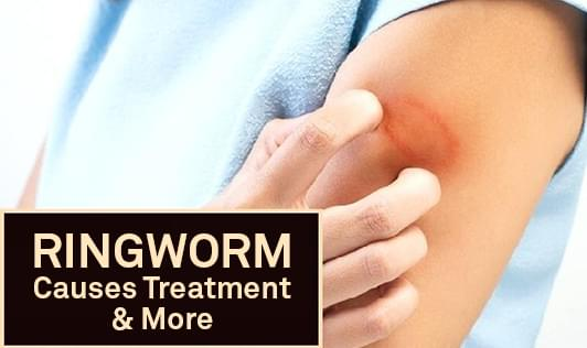 Ringworm causes treatment more the wellness corner - Can ringworm spread in a swimming pool ...